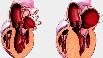 Уплотнение мышечной ткани левого желудочка