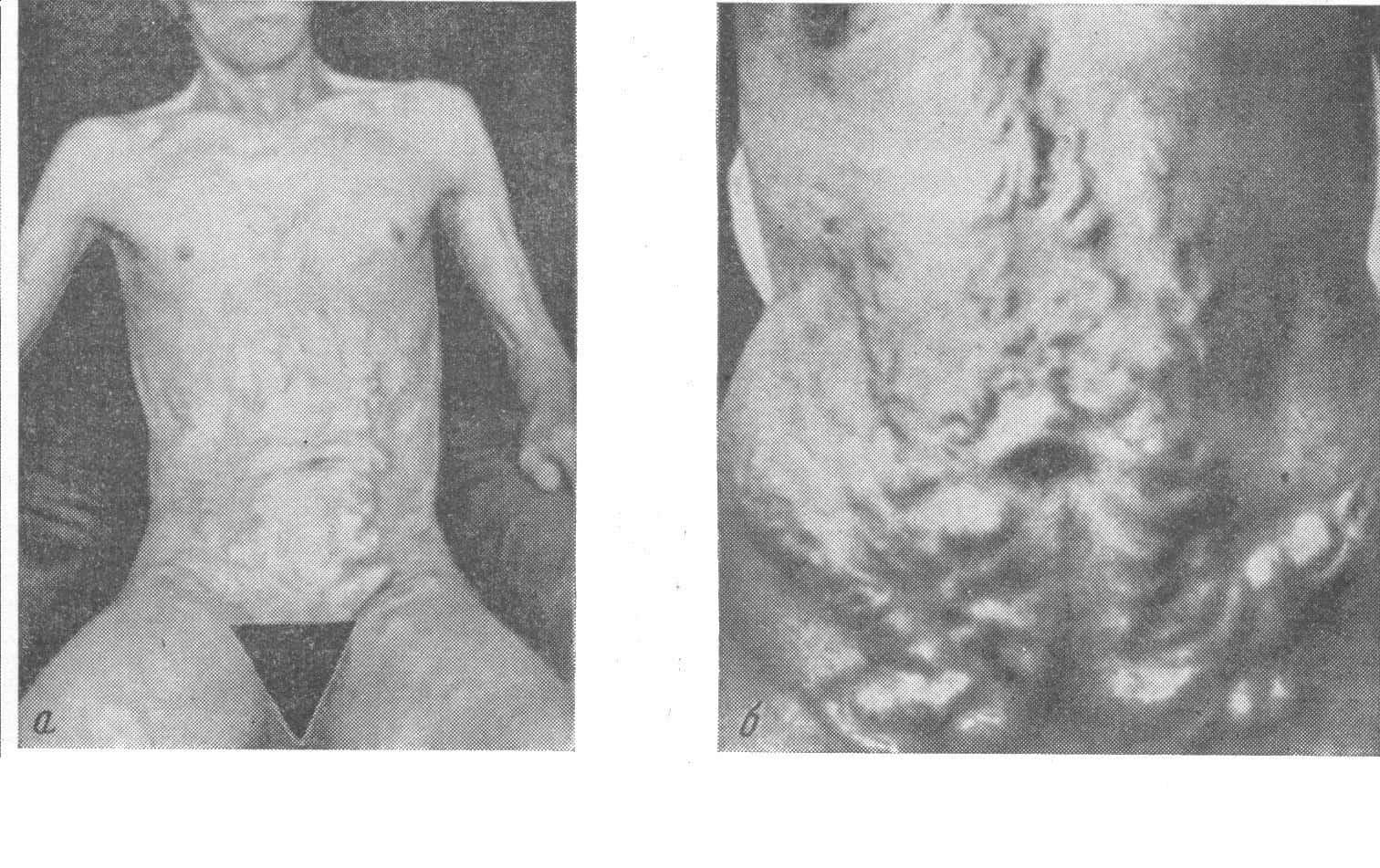 «Голова медузы» - расширенные вены в области живота — один из клинических признаков гипертензии