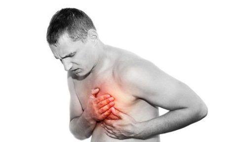 Аритмогенный шок
