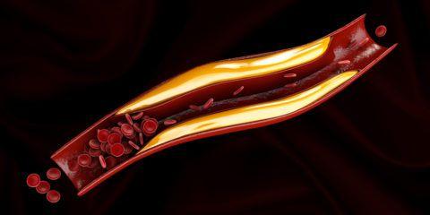 Атеросклероз – причина развития патологии.