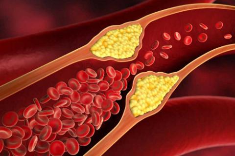 Атеросклероз отрицательно влияет на свойства PS