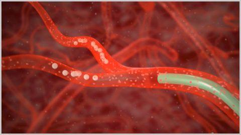 Эмболизация венечных артерий