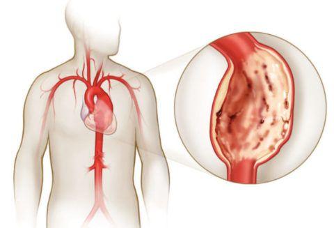 Главные симптоматические проявления атеросклероза аорты и сердца