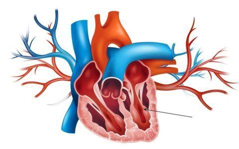 Изменение в желудочковом миокарде