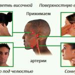 Измерение PS на артериях головы