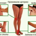 Измерение PS на артериях нижних конечностей