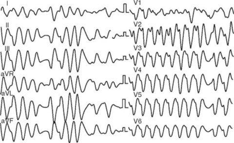Код желудочковой тахикардии по МКБ 10 – 147.2