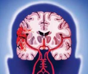 Кровоизлияние в ткани головного мозга