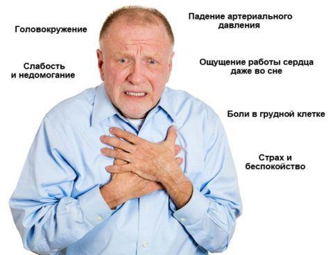 На картинке мужчина, у которого тахикардия синусовая, узловая симптомы.