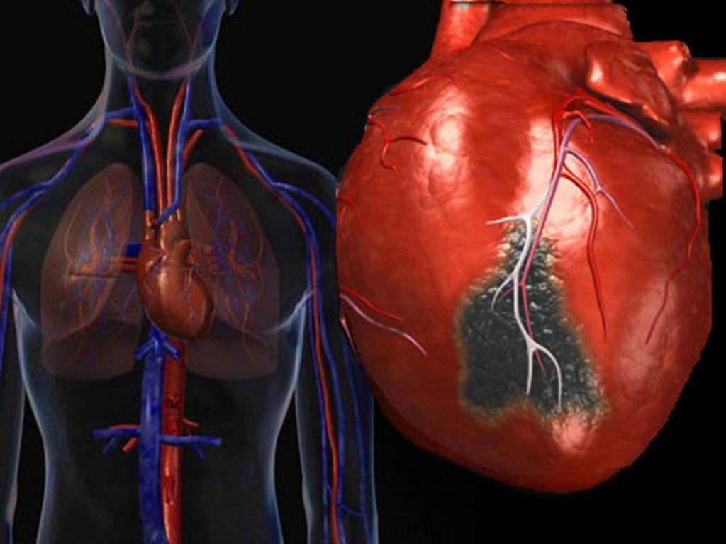 Поздние осложнения инфаркта миокарда