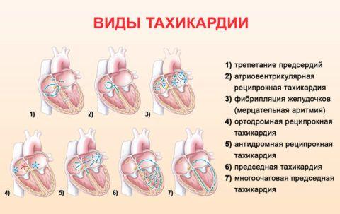 Основные виды патологии сердечно – сосудистой системы с увеличением числа сердечных сокращений.