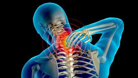 Остеохондроз шейного отдела нарушает питание головного мозга.