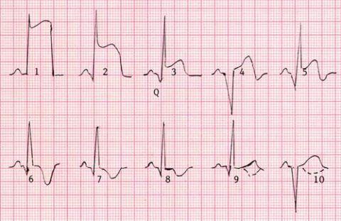 Показатели кардиограммы