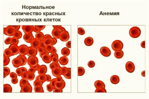 Причина частого PS – дефицит гемоглобина