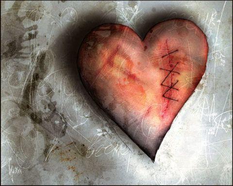 Рубец после поражения задней стенки сердца остается на всю жизнь