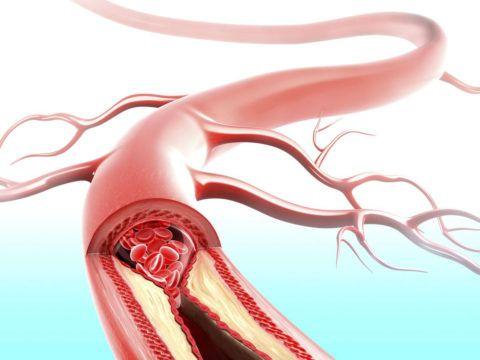 Влияние увеличенного артериального давления на кровеносные сосуды
