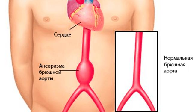 Аневризма аорты брюшной полости: симптомы и лечение