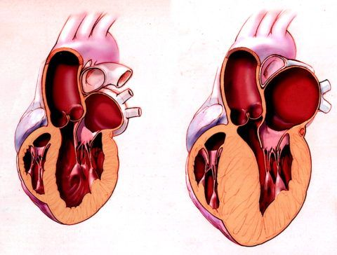 Здоровое сердце и сердце с увеличенной массой левого желудочка