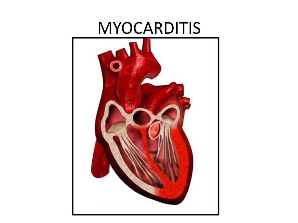 Миокардитом называют воспалительное поражение мышечной ткани сердца