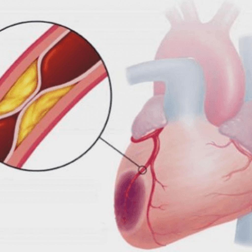 Стенокардия развивается на фоне сужения коронарных сосудов - атеросклероза