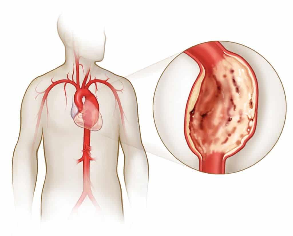 При аневризме наблюдают нарушение анатомического строения стенки сосуда