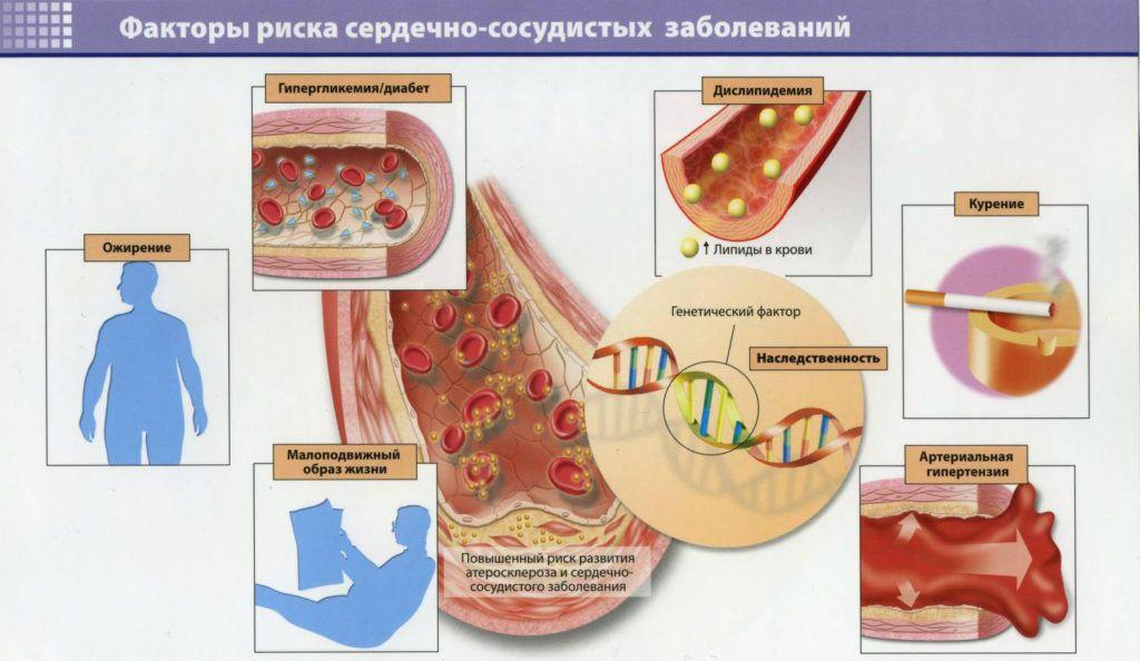 Факторы риска развития атеросклеротического кардиосклероза