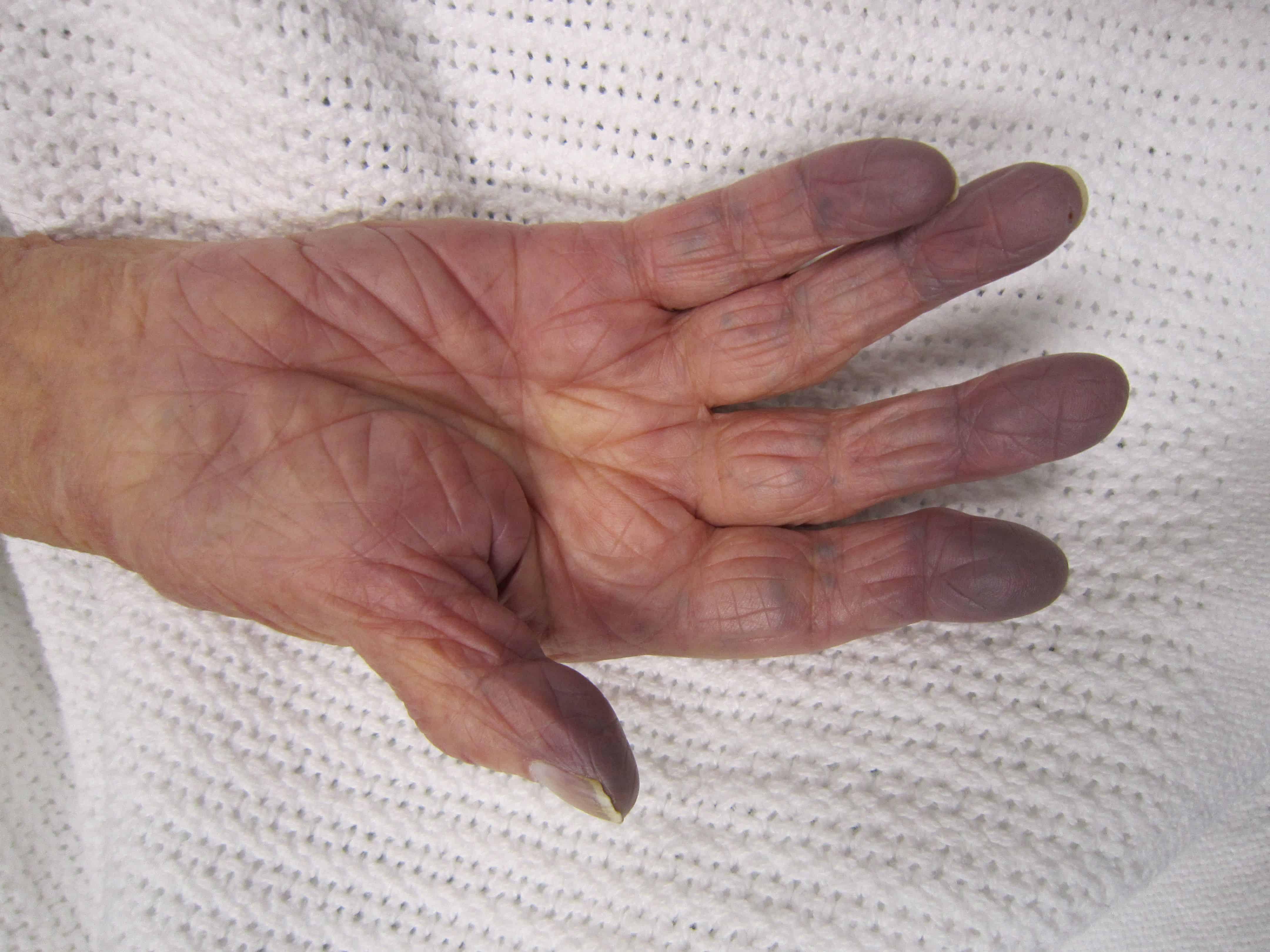 Гипертрофия миокарда