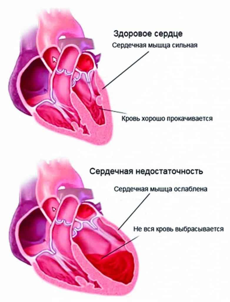 Так происходит развитие сердечной недостаточности