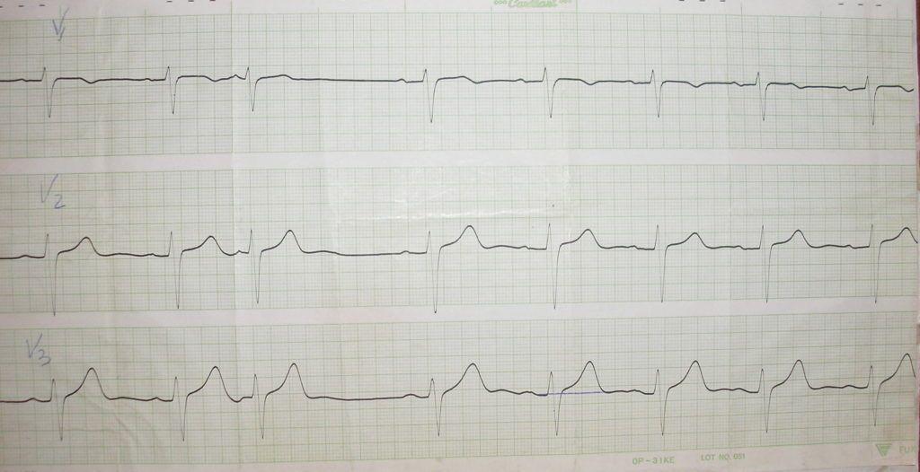 Желудочковая аритмия на ЭКГ