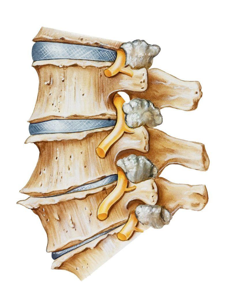 Ущемление нервов пораженными межпозвонковыми дисками вызывает болевой синдром