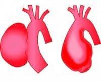 Аневризма восходящей аорты сердца