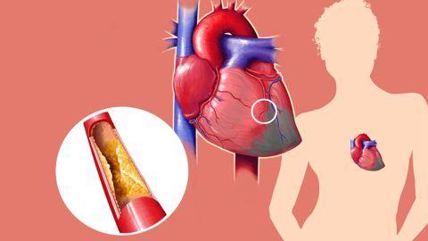 Атеросклероз сосудов — ведущая причина развития синдрома