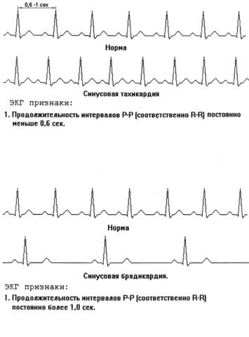 ЭКГ признаки норм и патологии пульсации.
