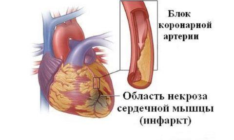 Механизм развития инфаркта