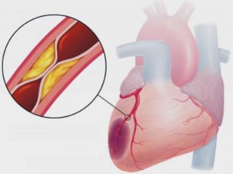 Нарушение кровоснабжения мышц сердца