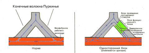 Представлена норма в проведении импульса и патология, возникшая на фоне блока.