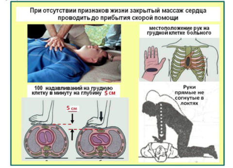 При отсутствии дыхания и сердцебиения реанимационные мероприятия проводятся до прибытия медиков