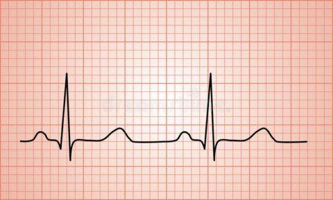 При подозрении на ишемическую болезнь сердца всегда проводится ЭКГ
