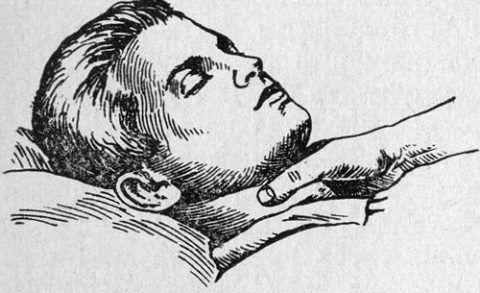 При тахикардическом приступе рекомендуется сделать массаж сонной артерии