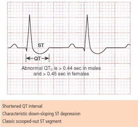 Признаки интоксикации дигиталисными препаратами на электрокардиограмме.
