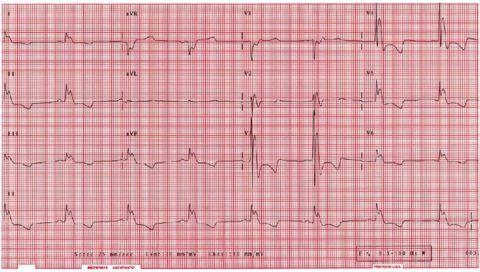 Разные нарушения ритма работы сердца при брадикардии