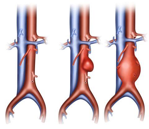 Разные типы аневризм