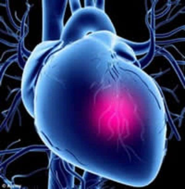 Шок при инфаркте миокарда ⋆ Лечение Сердца