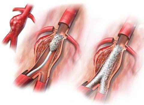 Стент в сосуде обеспечивает нормальный кровоток