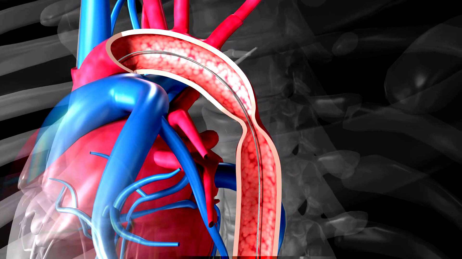 Аорта картинки сердце