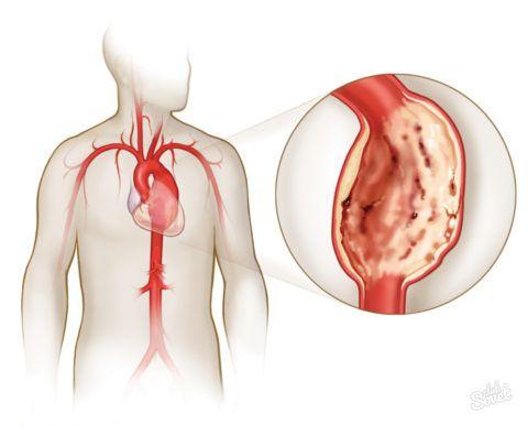 Тромб, мешающий нормальной циркуляции крови, приводит к инфаркту