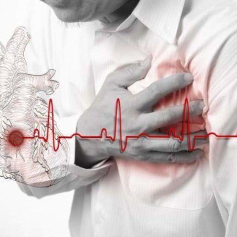 Восстановление после инфаркта