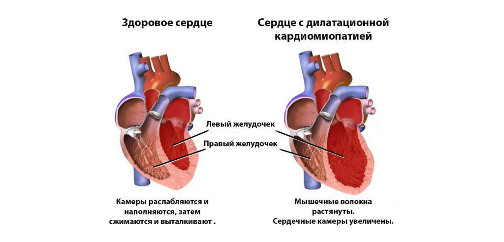 Характеристика дилатационной кардиомиопатии