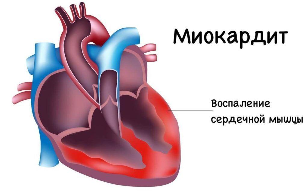 Увеличение сердечной мышцы вследствие воспаления