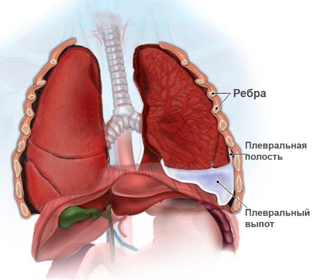 Накопление жидкости в плевральной полости сопровождается сильными болями
